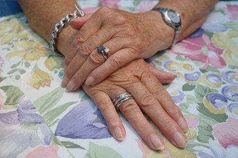 Які хвороби можна визначити за зовнішнім виглядом нігтів
