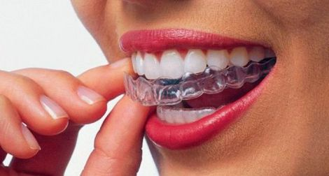 Вирівнювання зубів
