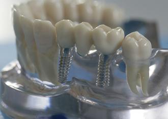 Популярность имплантации зубов