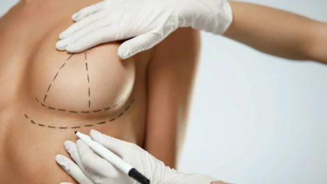 Чи існують протипоказання для збільшення грудей?