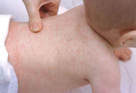Детские кожные заболевания - серьезная проблема современности