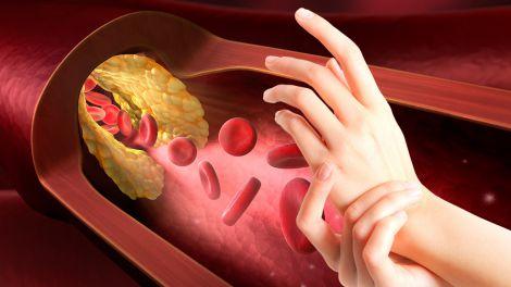 Високий холестерин: одна ознака на шкірі попередить про небезпечний стан