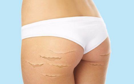 ТОП 7 домашніх засобів проти розтяжок на шкірі