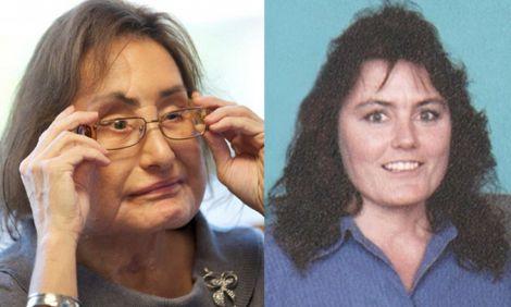 Померла жінка, якій вперше пересадили обличчя