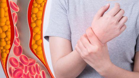 Високий холестерин: два основних симптоми в руках і ногах