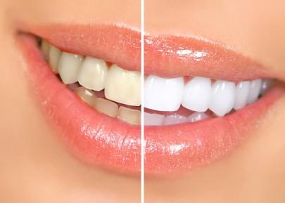 Як прибрати зубний наліт в домашніх умовах