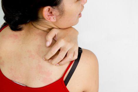 Небезпечні укуси комарів