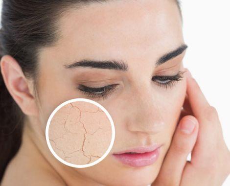 Сухий тип шкіри потребує особливого догляду