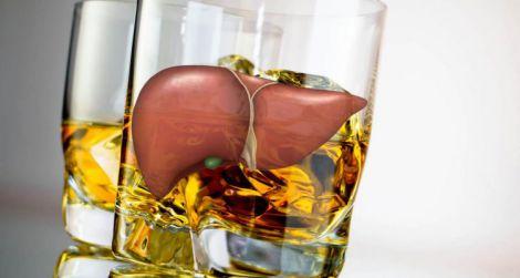 Алкогольне ураження печінки: 3 небезпечних симптоми
