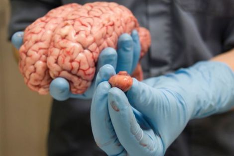 Несподіваний симптом раку мозку