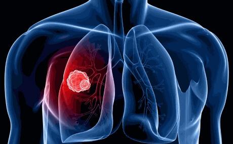 Незвичайний симптом раку легенів, що виявляється в руках і ногах