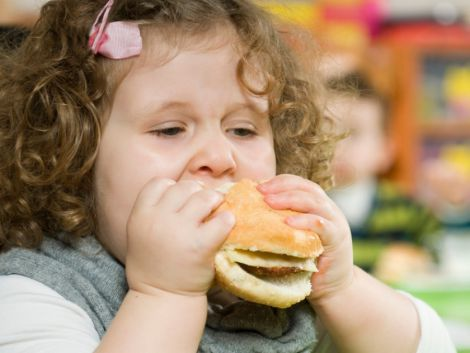 Епідемія ожиріння