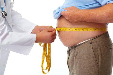 Вплив ожиріння на мозок