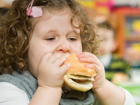 Дитяче ожиріння