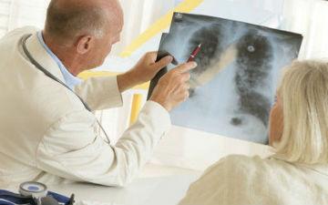 Новий вид діагностики раку легенів