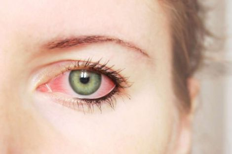 Почервоніння очей