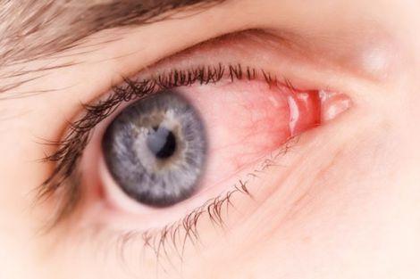 Причини почервоніння очей