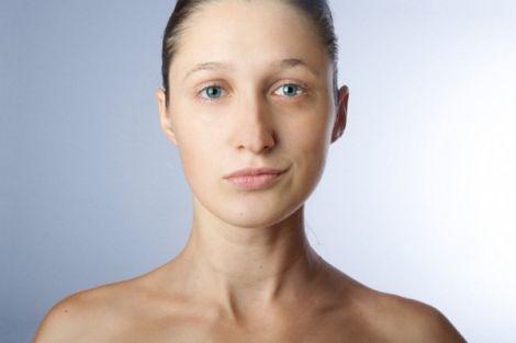 Причини асиметрії очей