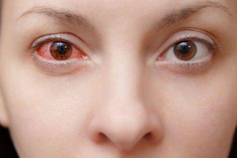 Зараження COVID-19 через очі