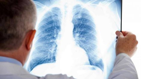 Коли людство переможе туберкульоз?
