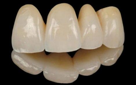 Все зависит от зубов, на которые нужно ставить коронки