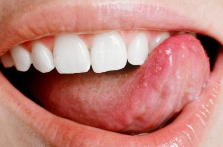 Оніміння язика