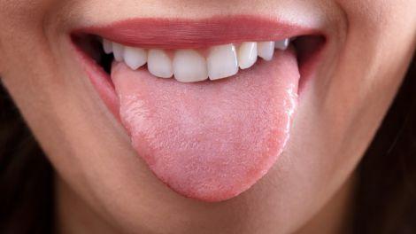 Колір язика сигналізує про інфаркт