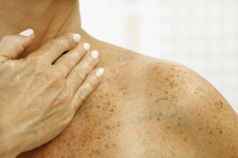 Про що свідчать темні плями на шиї?