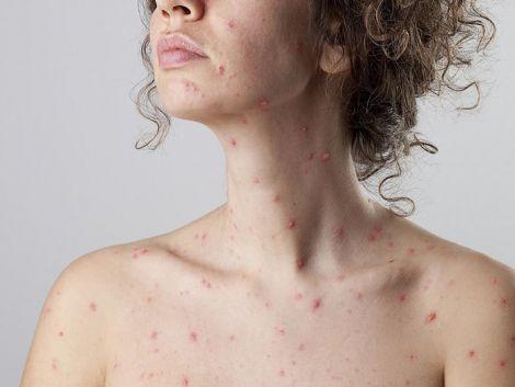 Виразки на тілі можуть свідчити про небезпечну хворобу