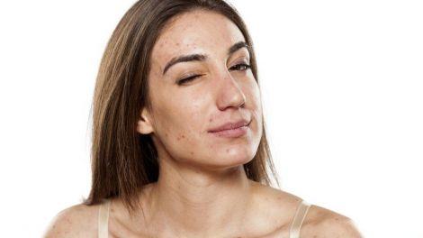 Їжа, яка покращить стан шкіри
