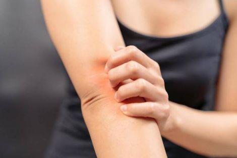 Свербіж шкіри: основні розлади