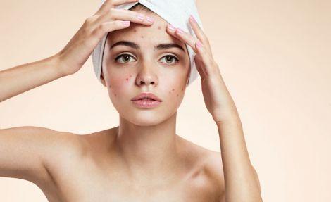 Популярні міфи про висипи на шкірі