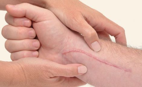 Шкіра може відновлюватись без шрамів