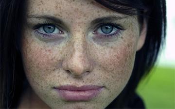 боротись з веснянками можна за допомогою засобів домашньої косметології