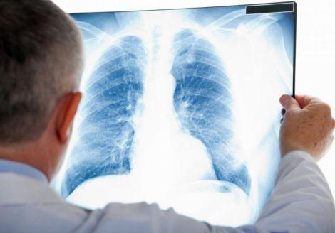 Тест ДНК прискорить діагностику пневмонії у хворих на коронавірус