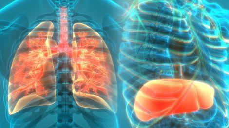 Спосіб лікування цирозу печінки і фіброзу легенів знайшли американські вчені