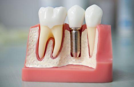 Что такое имплантация зубов и зубные импланты?