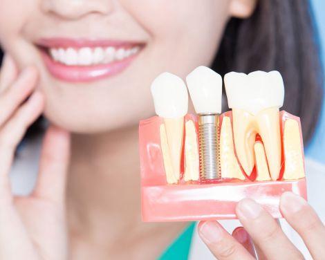 Качественная имплантация зубов в Черкассах