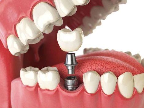 Нова методика замінить зубні імпланти