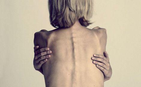 Анорексія може призводити навіть до летальних випадків