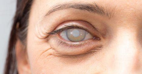 Профілактика катаракти