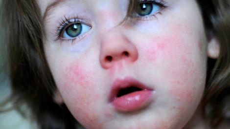 Скарлатиною можна захворіти у дорослому віці