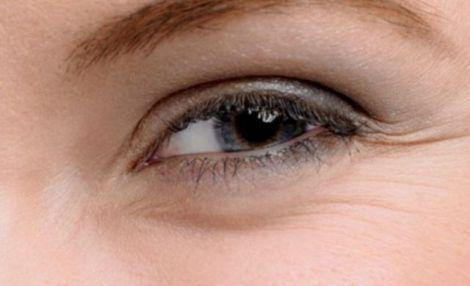 Зморшки навколо очей