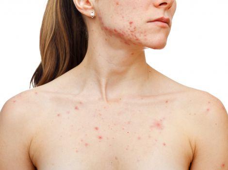 Незвичайні види алергії