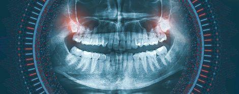Зуби мудрості провокують неприємний запах з рота
