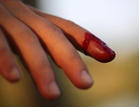 Як діяти при порізах