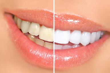 Жовтий наліту на зубах