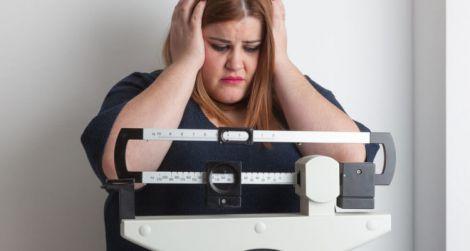 Зайві кілограми можуть призводити до випадіння волосся