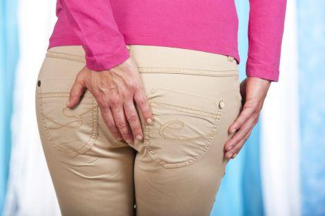 Делікатна проблема: методи лікування геморою