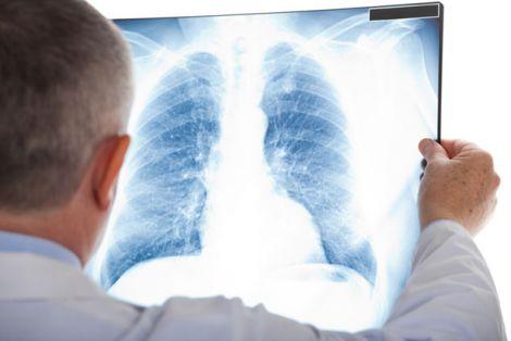 Вплив коронавірусу на легені